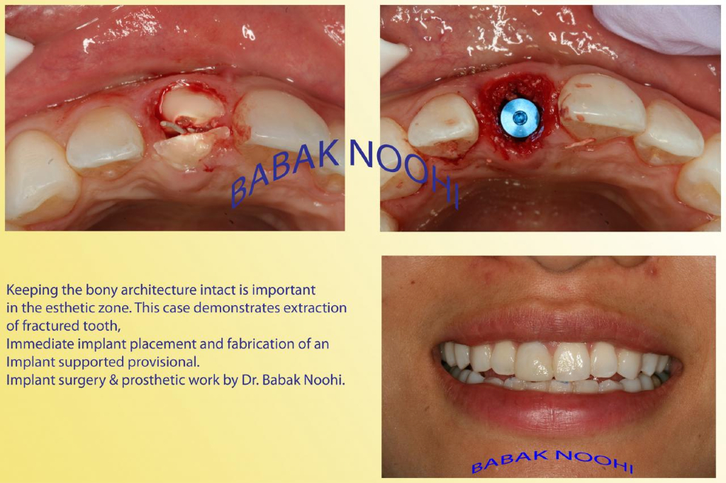 broken tooth, fractured front tooth, emergency implant dentist, implant specialist,