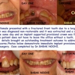 broken tooth, fractured front tooth, emergency implant dentist, implant specialist, missing tooth,