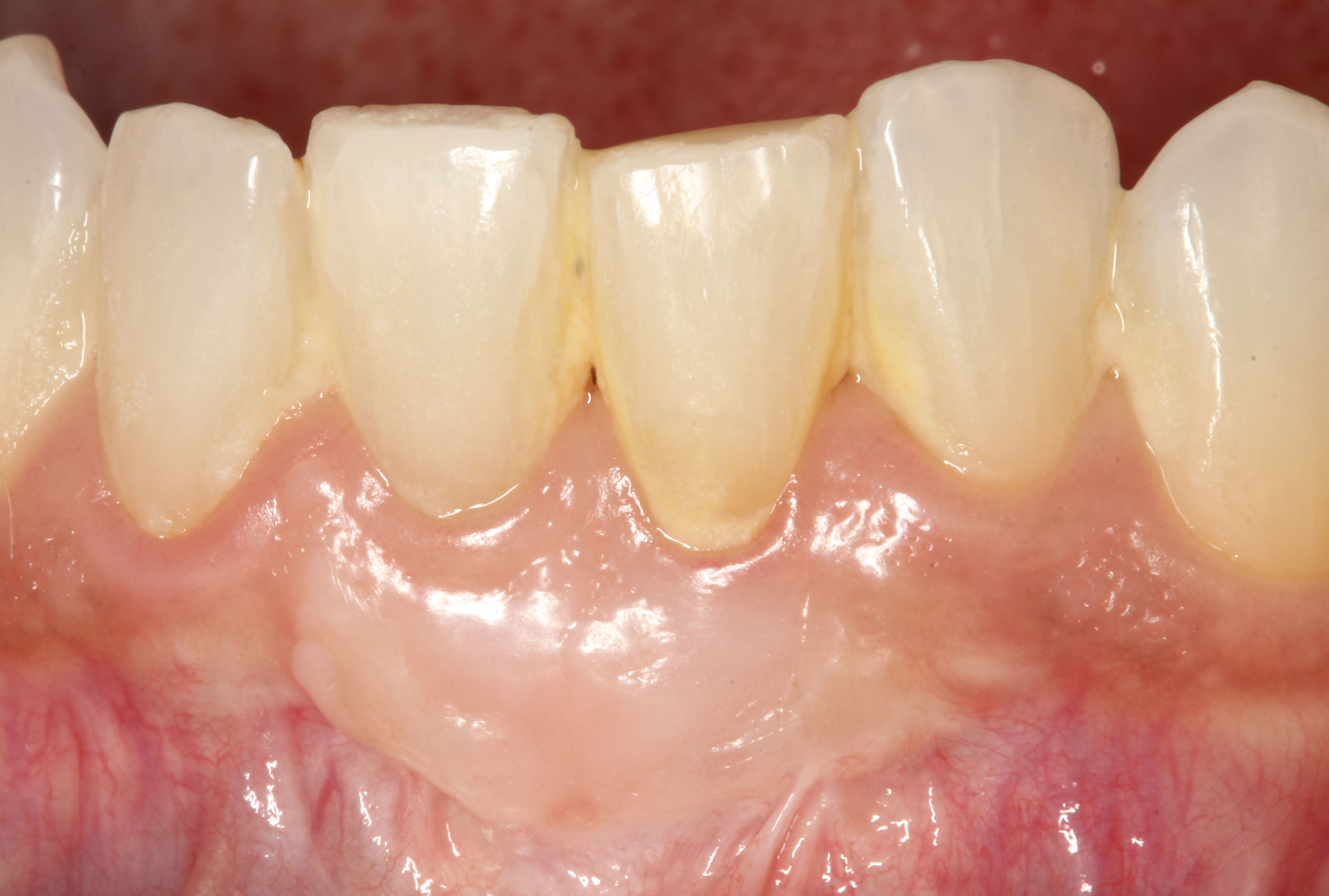 free gingival graft 2 years follow up