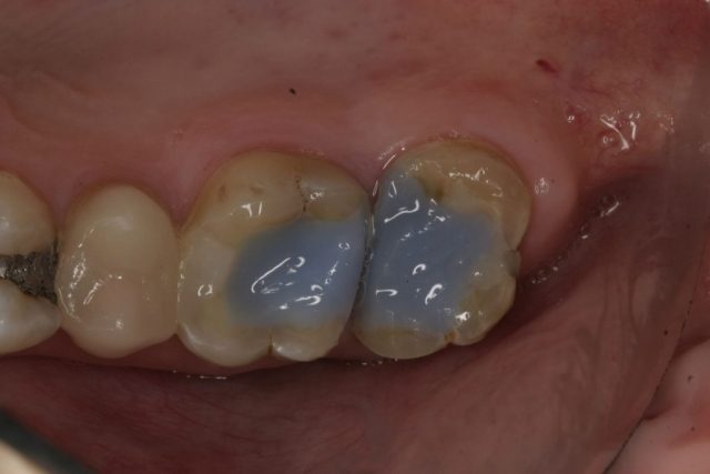 molars after root canal treatment, crowns, short teeth,