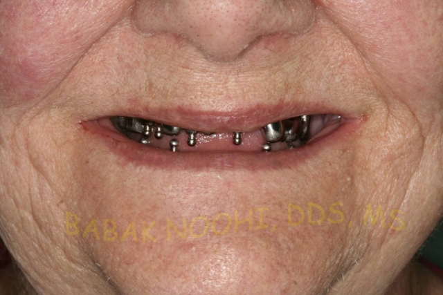 implant denture, old implants, lost denture, all on 4, all on six