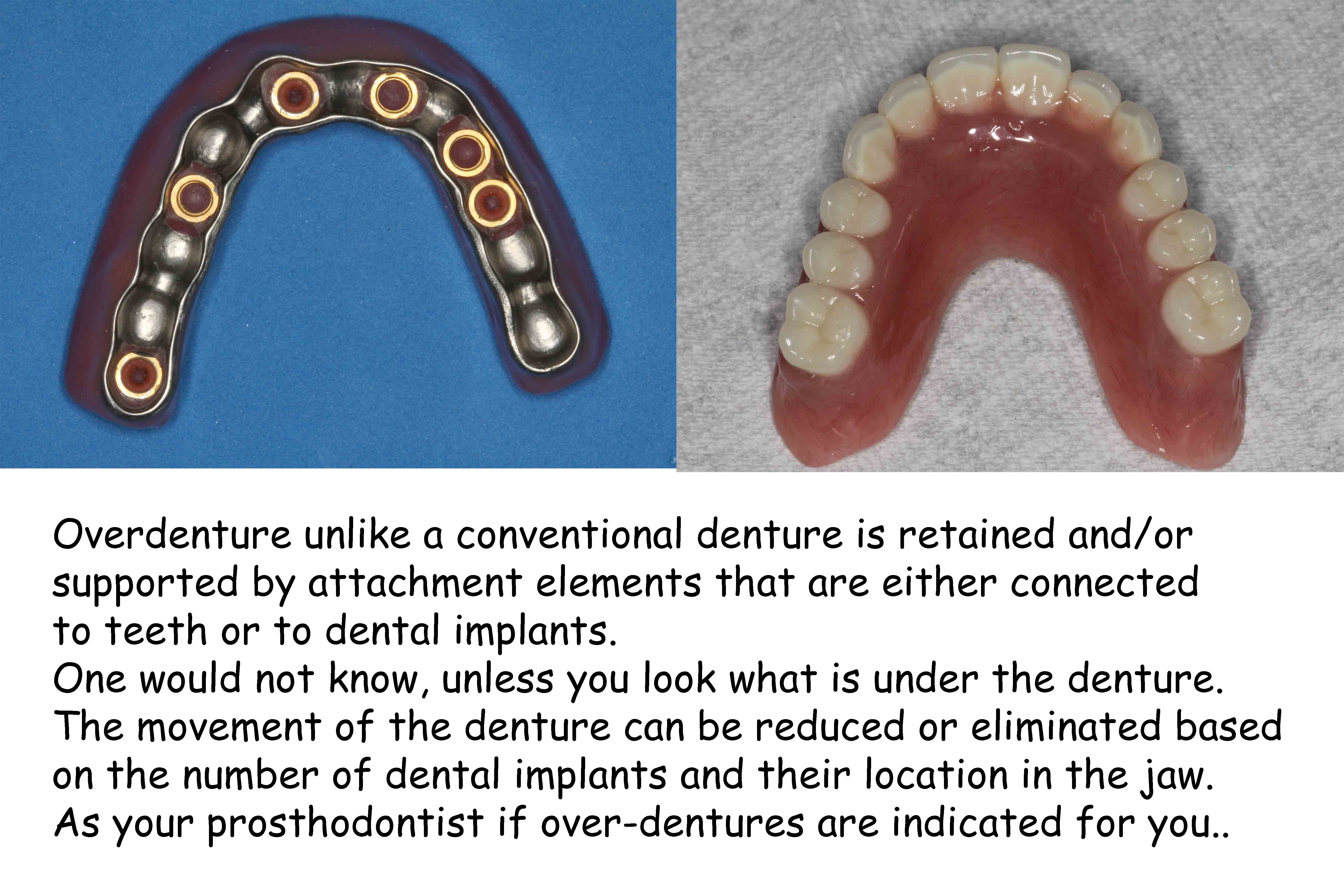 implant dentures, all on 4, all on 6, overdentures