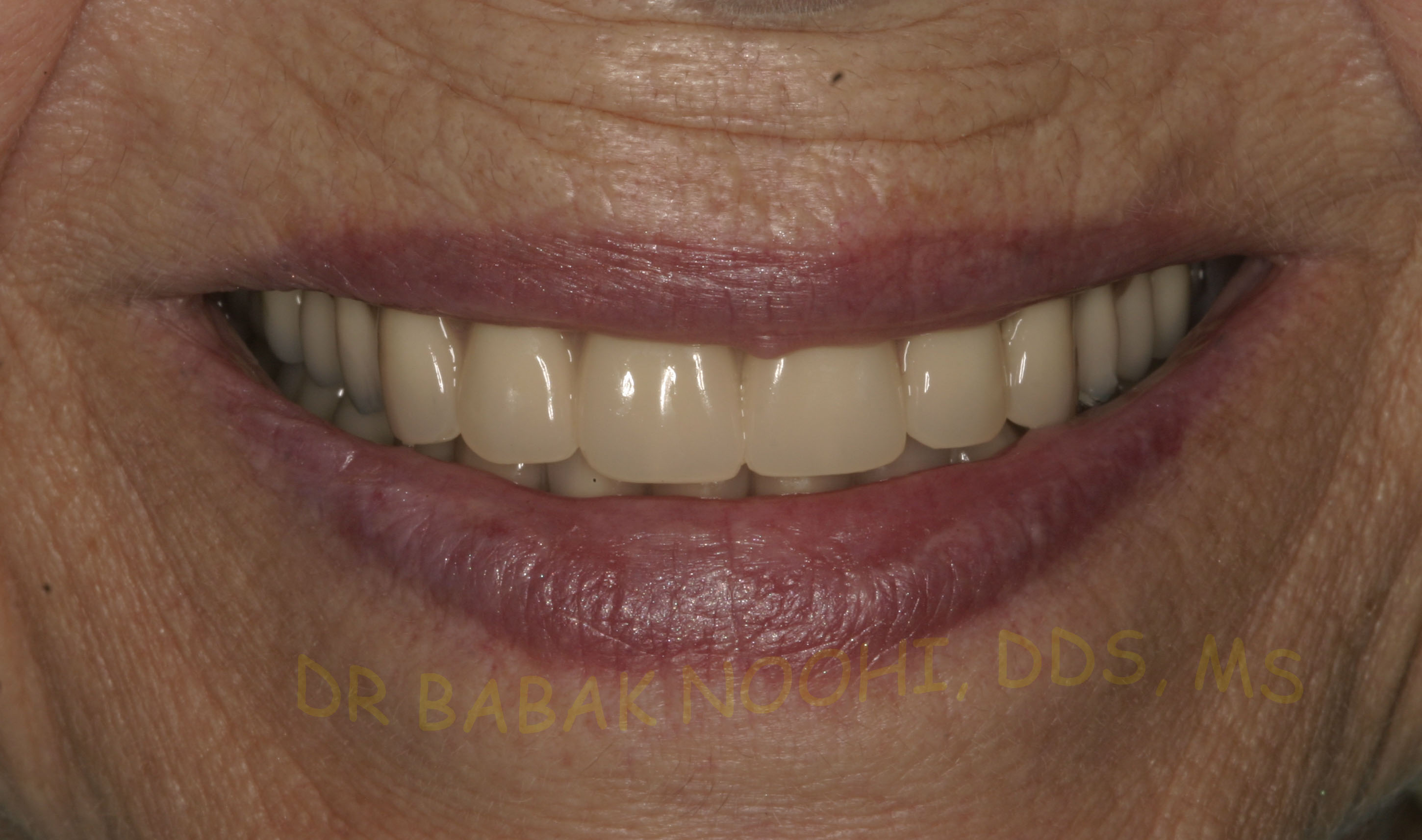 life like denture and overdenture