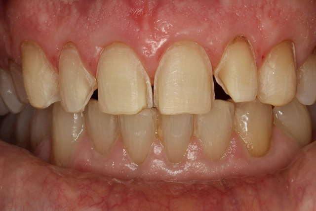 Veneers Super Conservative Tooth Preparation To Ensure More Than 60 Enamel Remaining On Teeth Surfaces
