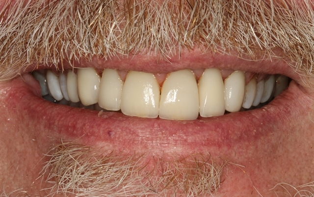 Veneers_ all 7 veneers bonded