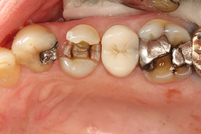 Lost silver filling, tooth ache,  chipped tooth, large filling