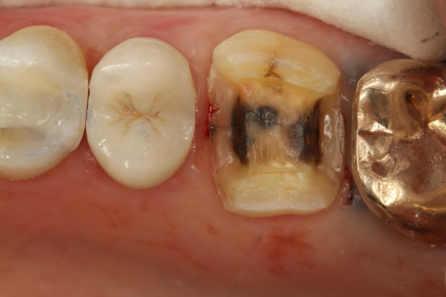 onlay, partial crown, chipped tooth, large filling