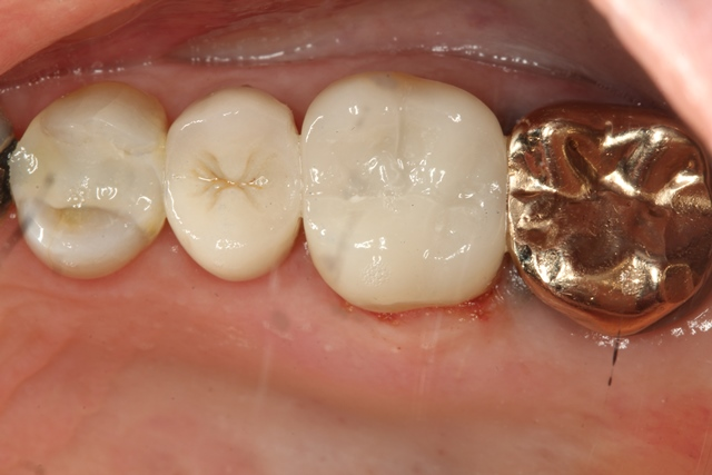 Porcelain Onlay, crown, chipped tooth. crown vs. onlay.