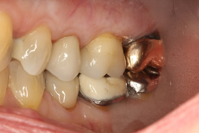 Onlay, Crown, broken tooth, lost silver filling, chipped tooth, sensitive tooth